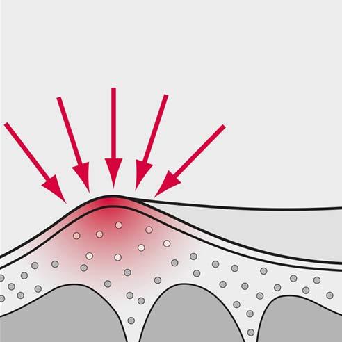 Wund- und Schutzgel - Wundstelle | Protefix